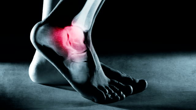 Human foot ankle and leg in x-ray, on gray background. Human foot ankle and leg in x-ray with screen ripple and noise for electronic displays of medical equipment or pc tablet. The foot ankle is highlighted by red colour. ankle stock videos & royalty-free footage