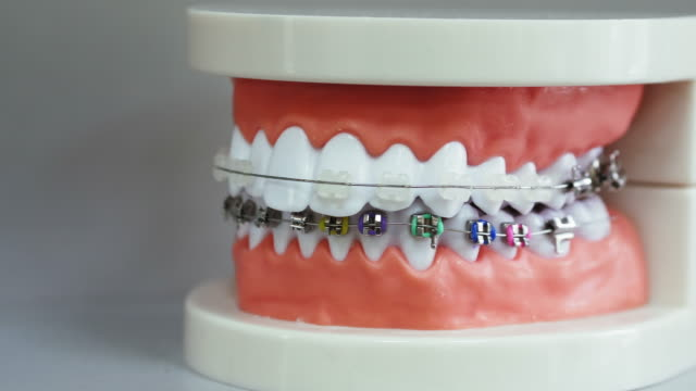 Human jaw model with different types of braces video