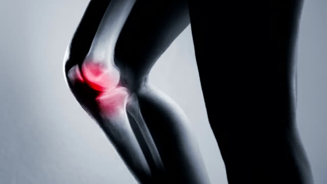 Human knee joint and leg in x-ray, on gray background Human knee joint and leg in x-ray with screen ripple and noise for electronic displays of medical equipment or pc tablet. The knee joint is highlighted by red colour. scandal abc stock videos & royalty-free footage