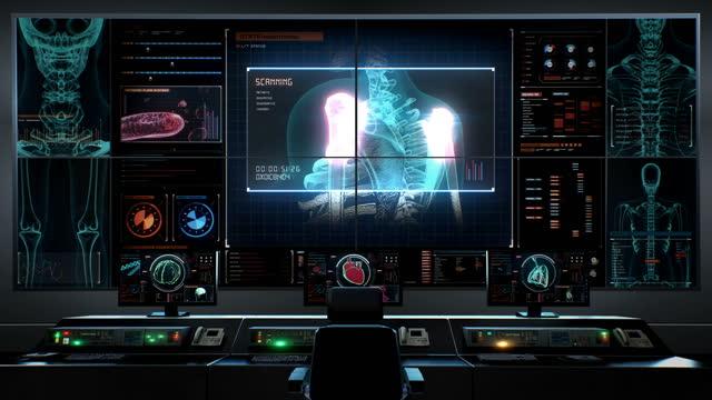 i̇nsan tıbbi bakım merkezi, ana kontrol odası, 3d ağrılı bir kol nevralji kemik, omuz illüstrasyon render. tıbbi kavram. 4k animasyon. - i̇nsan i̇skeleti stok videoları ve detay görüntü çekimi