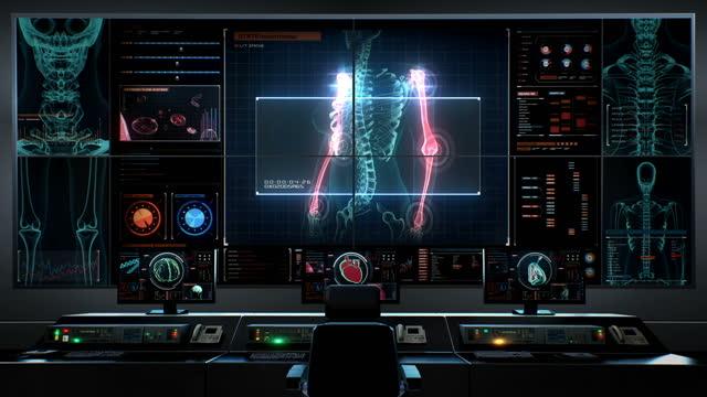 人間の医療センター、メインコントロールルーム、デジタルディスプレイの腕肘骨。4k。 - 四肢点の映像素材/bロール