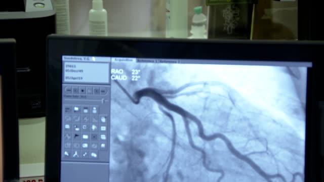 vídeos y material grabado en eventos de stock de investigación médica en clínica, angiografía y operación quirúrgica - arteriograma