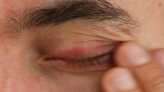 human scratches left eye with red allergic reaction and blink, redness and peeling psoriasis on face skin, seasonal dermatology problem, close-up macro