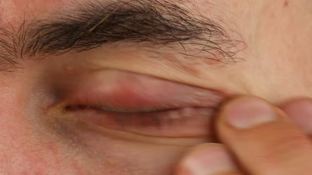 human scratches left eye with red allergic reaction, redness and peeling psoriasis on face skin, seasonal dermatology problem, close-up macro