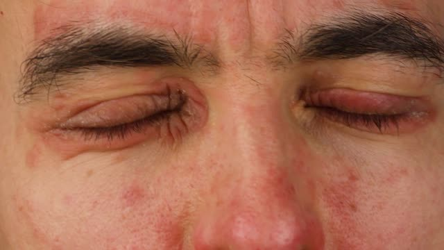 human scratches  two of eyes with red allergic reaction, redness and peeling psoriasis on face skin, seasonal dermatology problem, close-up