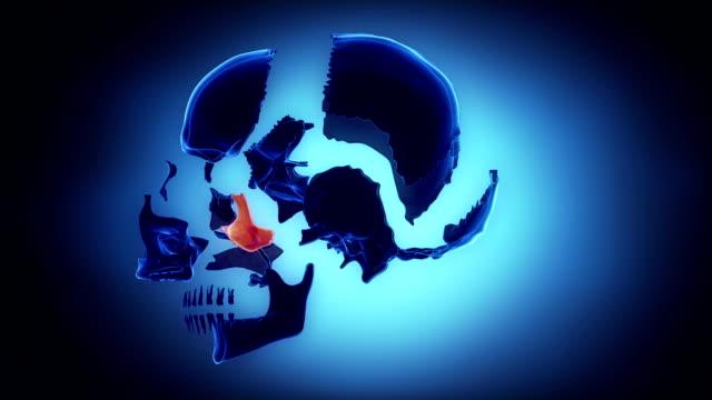 Human skull with skull bone parts explored video