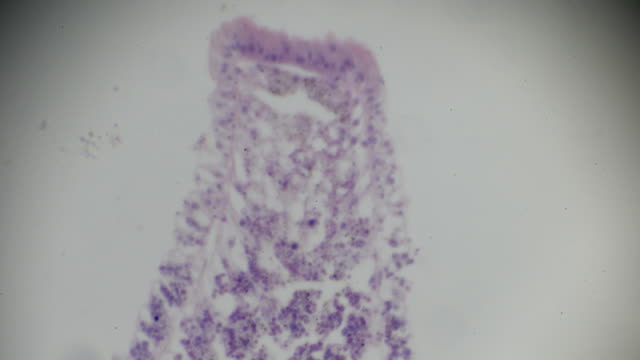 Hydra cross section under light microscopy