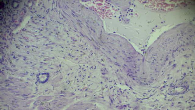 L'hypertension maladie rénale différentes superficies microscopie - Vidéo