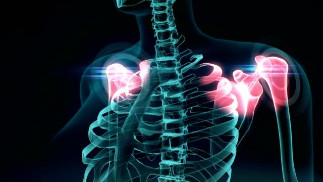 vídeos de stock, filmes e b-roll de 3d ilustração do ombro doloroso, conceito médico 4k.1. - articulação humana