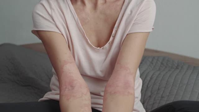 vídeos y material grabado en eventos de stock de inflamación de la piel en los brazos - alergias alimentarias