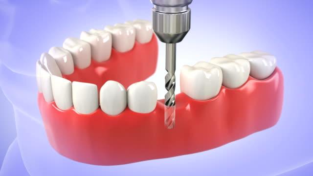 Proceso de instalación de implantes dentales.  ALTA DEFINICIÓN - vídeo