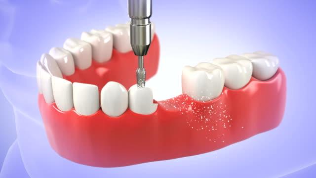 Installation process of Tooth Bridge. HD video