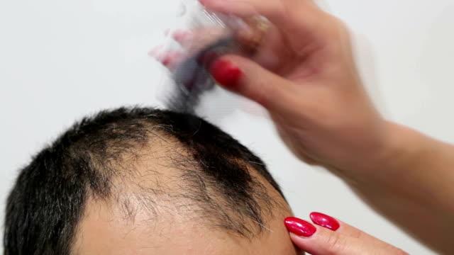 Interesting method for baldness video