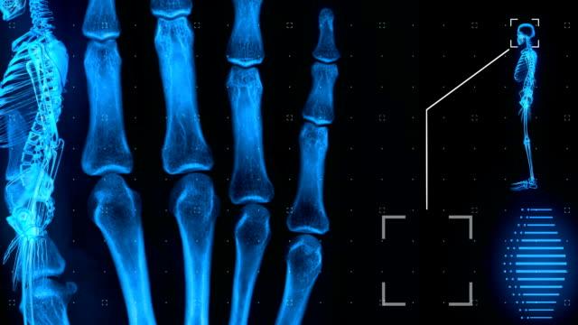 mri-gränssnittet. svart. loopable. lateral bild - ben bildbanksvideor och videomaterial från bakom kulisserna