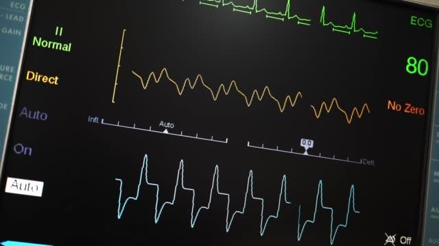 vídeos de stock e filmes b-roll de intra-aortic balloon pump - ataque cardíaco