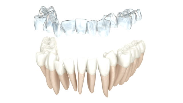 Invisalign braces or invisible retainer make bite correction. Medically accurate 3D animation