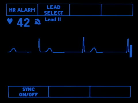 Junctional Rhythm A simulated monitor showing the junctional rhythm. defibrillator stock videos & royalty-free footage