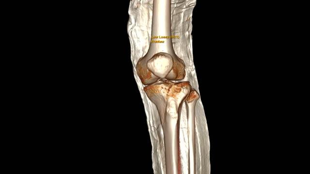 vídeos y material grabado en eventos de stock de imagen de renderizado 3d de rodilla por tomografía computarizada con losa de pierna larga que muestra hueso de tibia fractura. - columna vertebral humana
