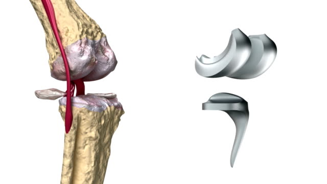 Knee and titanium hinge joint process Knee and titanium hinge joint process implant stock videos & royalty-free footage