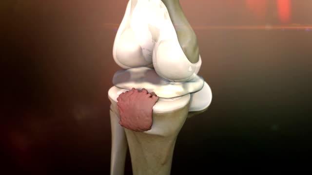 knee, arthritis video