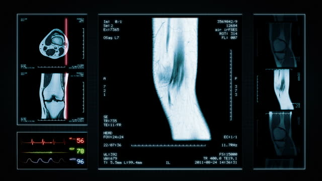 ginocchio rmi. parte superiore, anteriore e vista laterale. blu. - radiografia video stock e b–roll