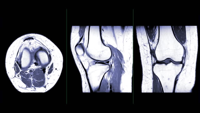 MRI knee or Magnetic resonance imaging comparison axial, sagittal and coronal view. MRI knee or Magnetic resonance imaging comparison axial, sagittal and coronal view. medical scanner stock videos & royalty-free footage