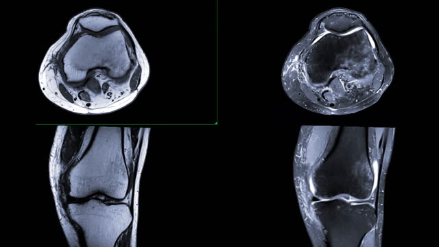 MRI knee or Magnetic resonance imaging comparison T2w axial and coronal view. MRI knee or Magnetic resonance imaging comparison T2w axial and coronal view. scientific imaging technique stock videos & royalty-free footage
