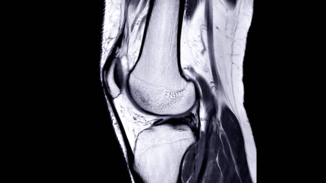 mri knä eller magnetisk resonanstomografi av knäleden sagittal pdw visa. - ben bildbanksvideor och videomaterial från bakom kulisserna