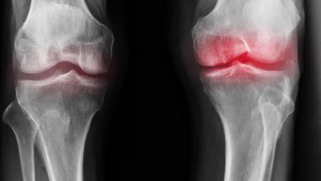 vídeos de stock, filmes e b-roll de oa de joelho x-ray imagens de imagem com close up articulação do joelho e vermelho hight luz - articulação humana