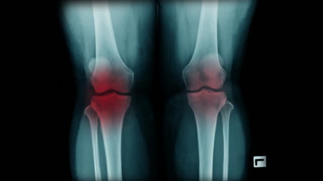 vídeos de stock, filmes e b-roll de imagem do raio x do joelho do oa - articulação humana