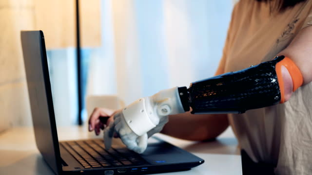 A lady is typing on her laptop with a healthy and a robotic arms A lady is typing on her laptop with a healthy and a robotic arms. 4K prosthetic equipment stock videos & royalty-free footage