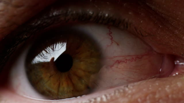 Large bloodshot males eye filmed in extreme closeup video