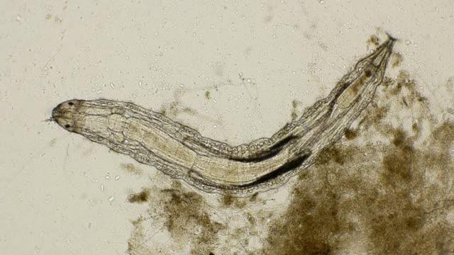 stockvideo's en b-roll-footage met larve dansmuggen lake midge of vliegen extern denken aan muggen, onder een microscoop - {{asset.href}}