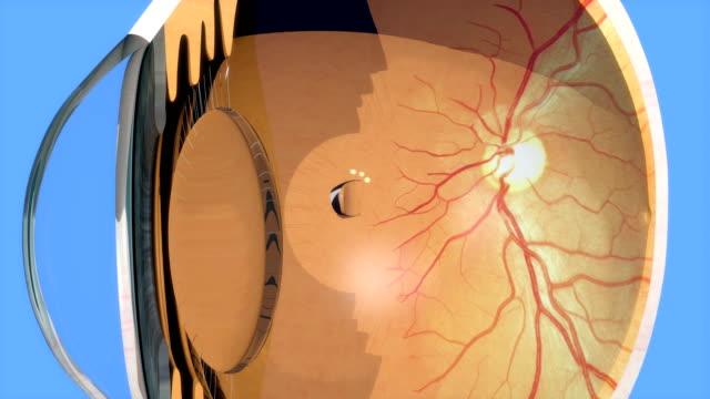 vidéos et rushes de laser photocoagulation autour de déchirure rétinienne, rendu 3d, 4k - rétine