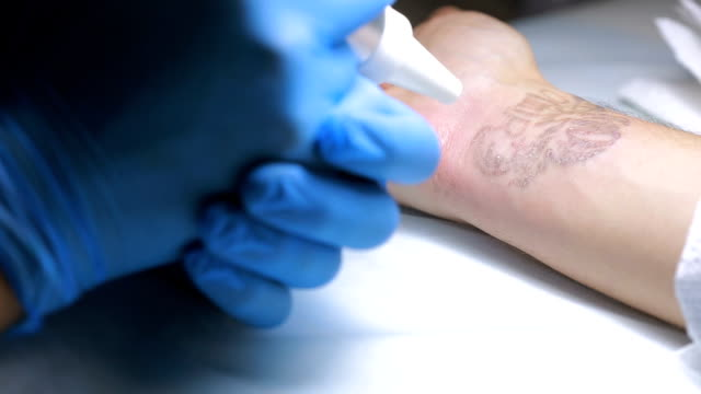 Laser tattoo removal with hand video
