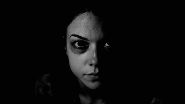 Life hurts.Portrait of beaten young woman.Stop violence against women! video