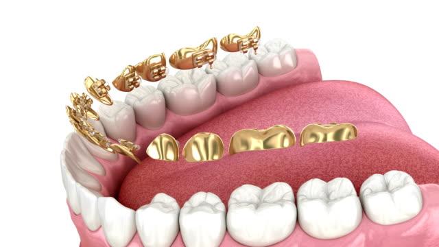vídeos y material grabado en eventos de stock de sistema de frenos dorados lingual. concepto de animación 3d de llaves doradas - ortodoncista