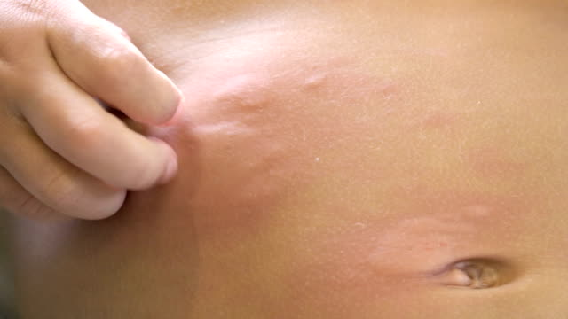 little boy scratching from urticaria. - alveare video stock e b–roll