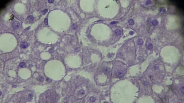 leber verfettung ansicht unter mikroskopie, zeigt der kreis fettablagerung - menschlicher verdauungstrakt stock-videos und b-roll-filmmaterial