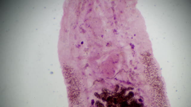 liver fluke Clonorchiasis under light microscopy liver fluke Clonorchiasis under light microscopy worm stock videos & royalty-free footage
