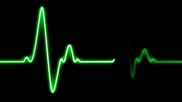 Looping EKG heart monitor - HD1080 video