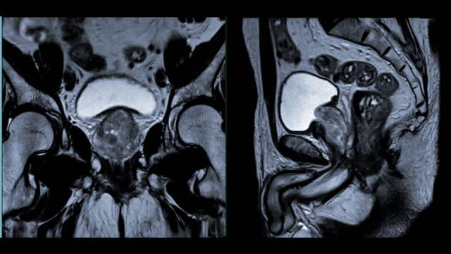 MRI Lower abdomen or MRI prostate gland for diagnosis prostate cancer. MRI Lower abdomen or MRI prostate gland for diagnosis prostate cancer. scientific imaging technique stock videos & royalty-free footage