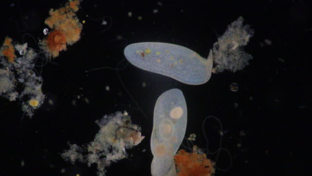 Loxodes is a genus of karyorelictean ciliates, belonging to family Loxodidae under the microscope for education.