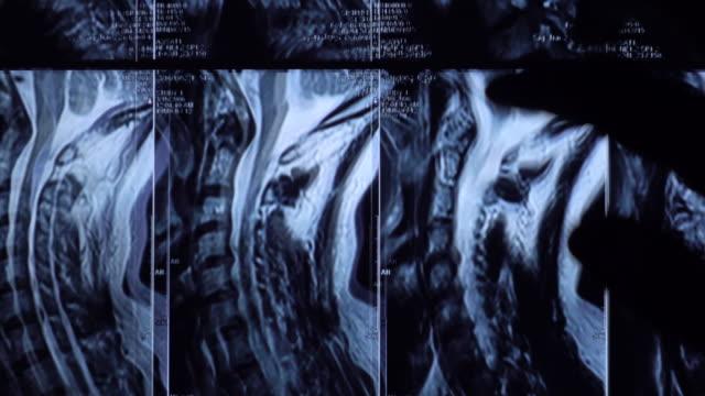 Lumbar Spine MRI Examine on Tablet