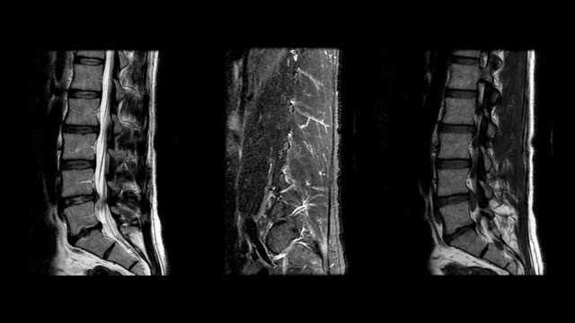 MRI Lumbar Spine Showing 3 Different Angles & 3 Speeds video