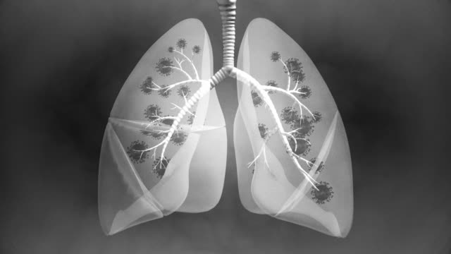 Lung Illness view X-ray - 4K Resolution