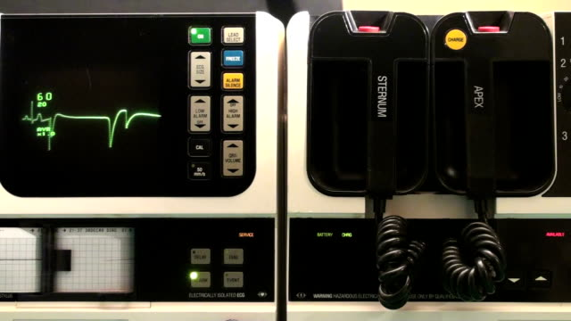 EKG machine heart attack with sound - HD 1080i Shot of full defibrillator with audio, heart fails, doctor picks up paddles  defibrillator stock videos & royalty-free footage
