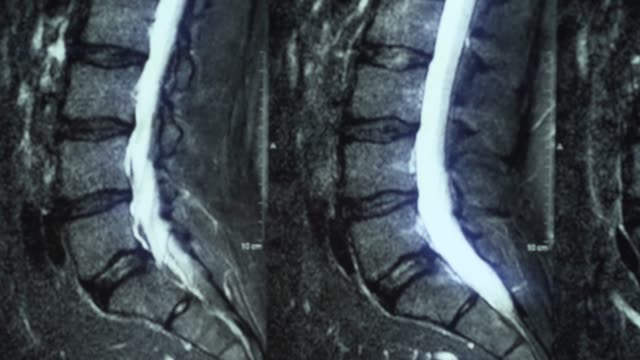 Macro panorama of MRI of lumbar spine with osteochondrosis, age-related changes in discs of vertebrae and pinched nerves video