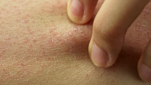 人間のcuマクロショットは、赤いアレルギー反応で彼女の腕を傷つける - 人の肌点の映像素材/bロール