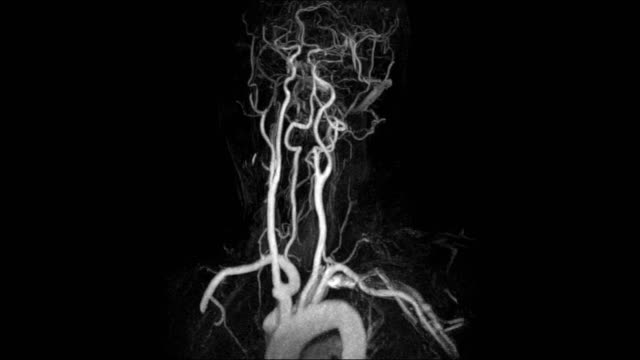 vídeos de stock e filmes b-roll de magnetic resonance angiography of the blood vessels in the brain and cerebrovascular disease. brain stroke x-ray image - artéria humana